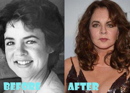Stockard Channing Plastic Surgery Facelift