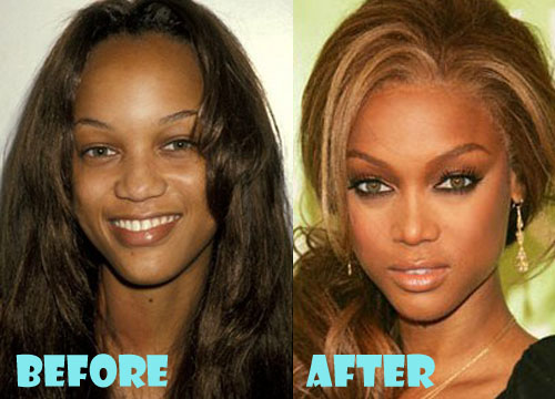 Tyra Banks Plastic Surgery Nose Job