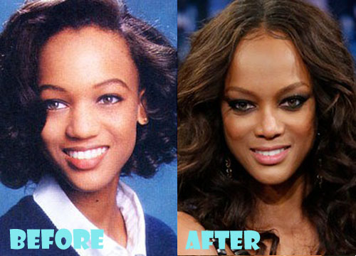 Tyra Banks Plastic Surgery