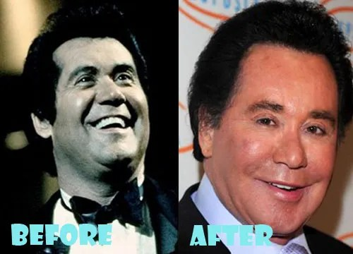 Wayne Newton Plastic Surgery Facelift, Botox