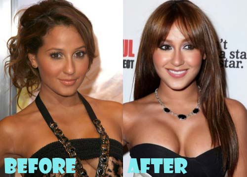 Adrienne Bailon Plastic Surgery Breast Implant