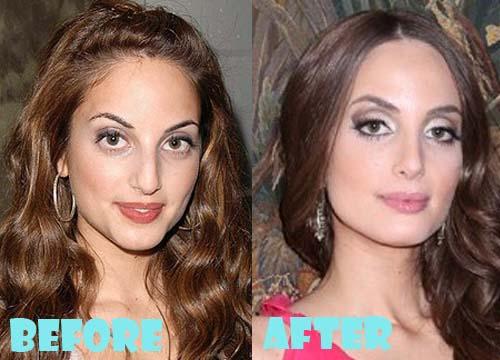 Alexa Ray Joel Plastic Surgery Nose Job