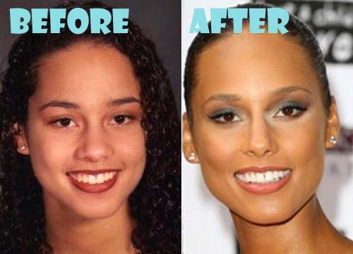 Alicia Keys Plastic Surgery Before And After Nose Job