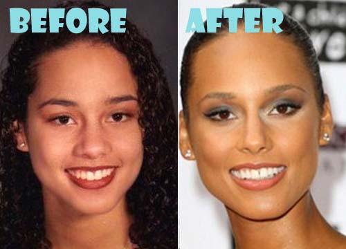 Alicia Keys Plastic Surgery Nose Job