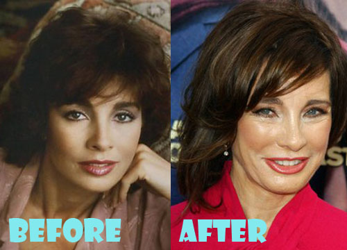 Anne Archer Plastic Surgery Botox, Facelift