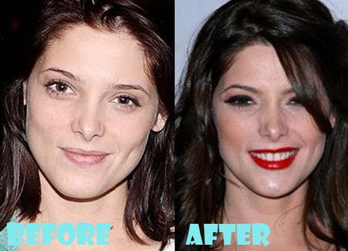 Ashley Greene Plastic Surgery