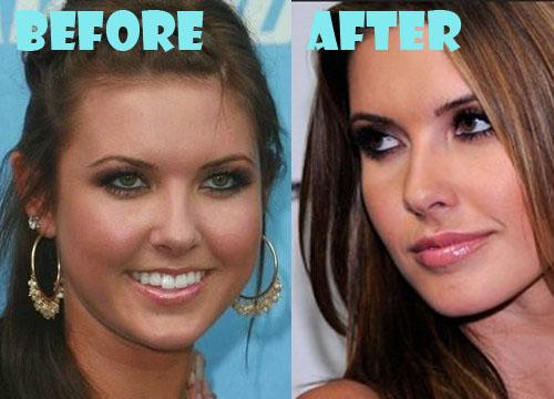 Audrina Patridge Plastic Surgery Nose Job