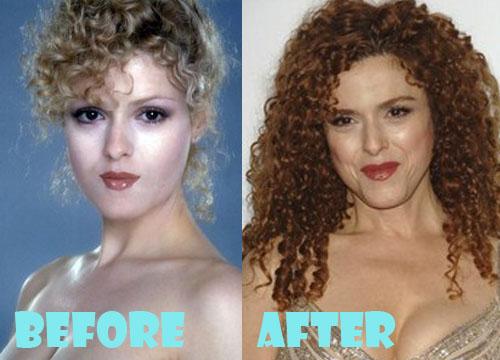 Bernadette Peters Plastic Surgery Botox, Facelift