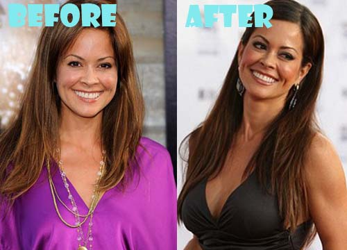 Brooke Burke Plastic Surgery Boob Job