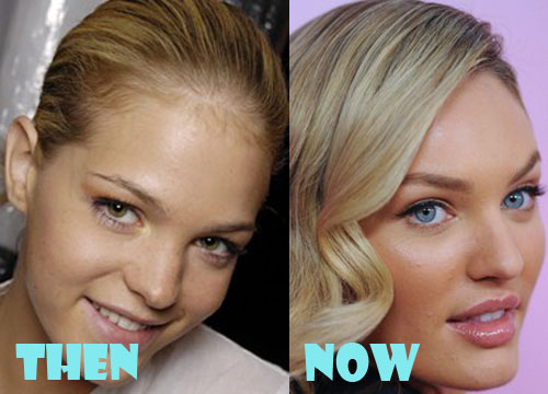 Candice Swanepoel Plastic Surgery Nose Job