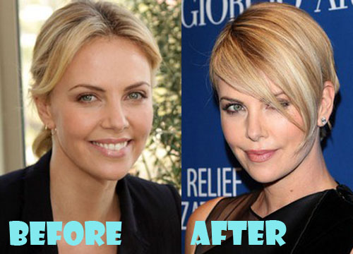 Charlize Theron Plastic Surgery Nose Job