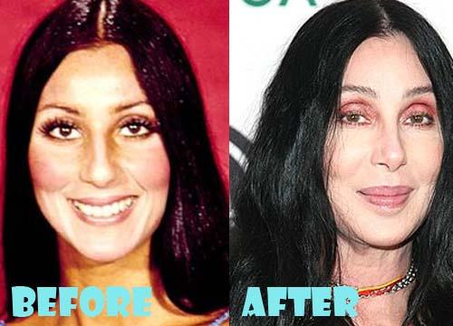 Cher Overdoing Plastic Surgery