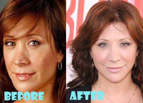 Cheri Oteri Plastic Surgery Nose Job