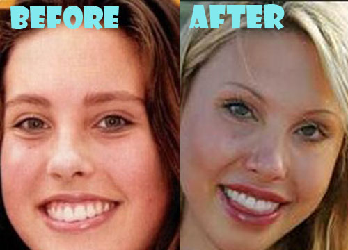 Chloe Lattanzi Plastic Surgery Lip Implant