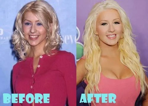 Christina Aguilera Plastic Surgery Breast Implant
