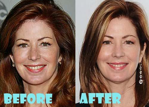 Dana Delany Plastic Surgery