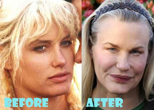 Daryl Hannah Plastic Surgery