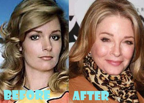 Deidre Hall Plastic Surgery