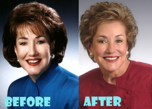 Elizabeth Dole Plastic Surgery