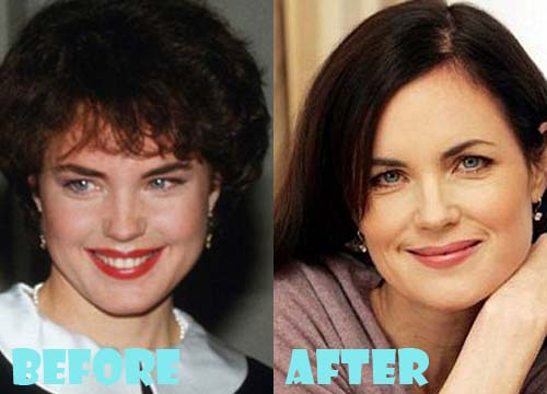 Elizabeth McGovern Plastic Surgery Botox, Facelift
