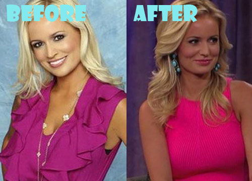 Emily Maynard Plastic Surgery Boob Job