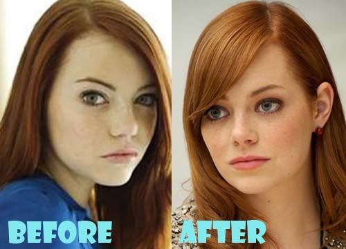 Emma Stone Plastic Surgery Nose Job