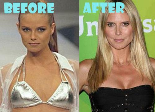 Heidi Klum Plastic Surgery Boob Job