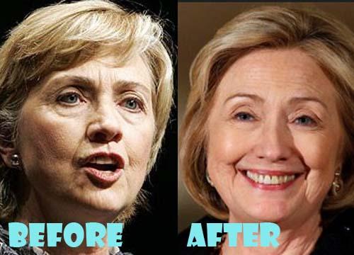 Hillary Clinton Plastic Surgery Facelift, Botox