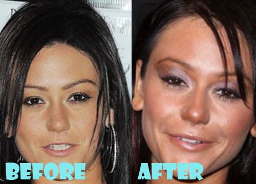 JWoww Plastic Surgery Botox, Facelift