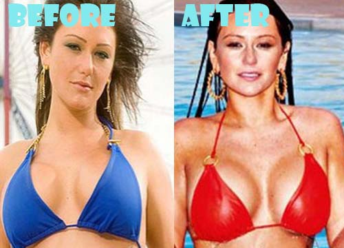 JWoww Plastic Surgery Breast Implant