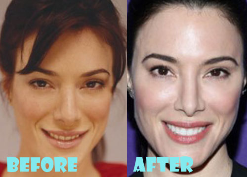 Jaime Murray Plastic Surgery Nose Job