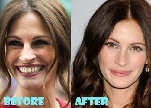 Julia Roberts Plastic Surgery Botox