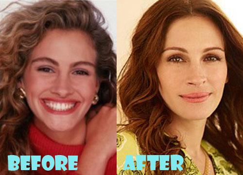 Julia Roberts Plastic Surgery Nose Job