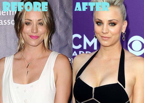 Kaley Cuoco Plastic Surgery Breast Implant
