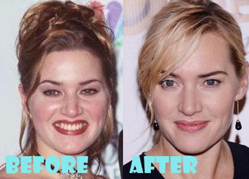 Kate Winslet Plastic Surgery
