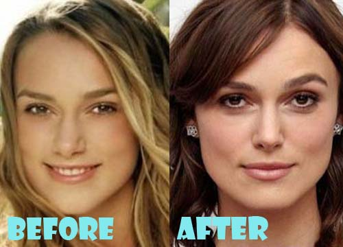 Keira Knightley Plastic Surgery Nose Job
