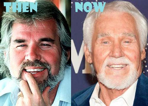 Kenny Rogers Plastic Surgery Before And After Photos