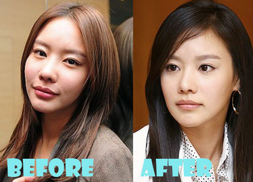 Kim Ah Joong Plastic Surgery Nose Job