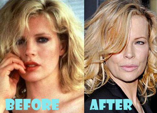 Kim Basinger Plastic Surgery Nose Job