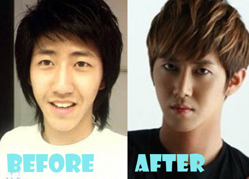 Kwang Hee Plastic Surgery