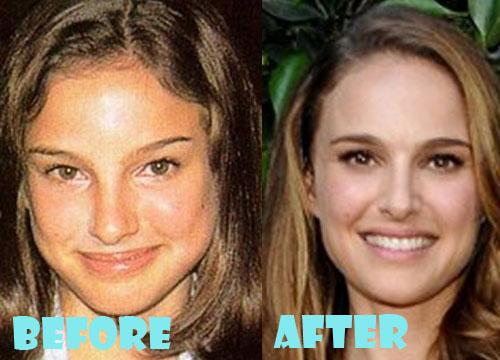 Natalie Portman Plastic Surgery