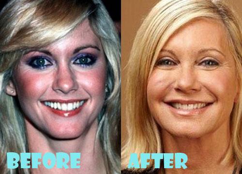 Olivia Newton John Plastic Surgery Facelift, Botox