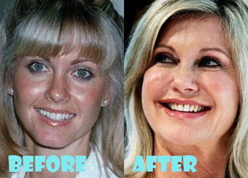 Olivia Newton John Plastic Surgery