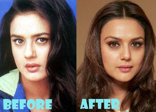 Preity Zinta Plastic Surgery Nose Job