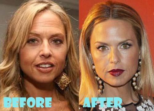 Rachel Zoe Plastic Surgery Botox, Facelift