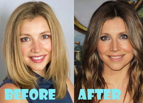 Sarah Chalke Plastic Surgery Nose Job