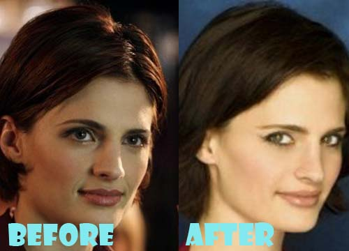 Stana Katic Plastic Surgery Nose Job