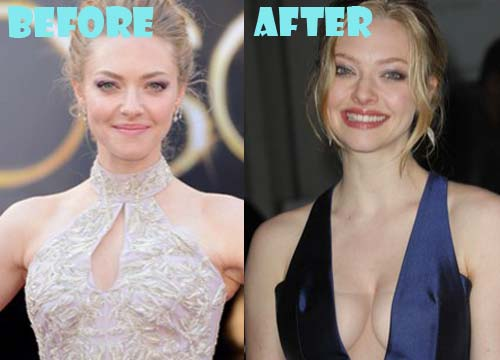 Amanda Seyfried Plastic Surgery Breast Implant