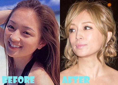 Ayumi Hamasaki Plastic Surgery Nose Job