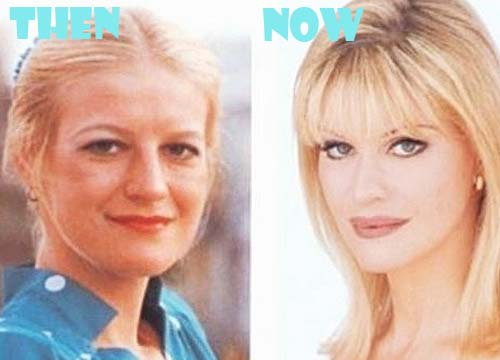 Cindy Jackson Plastic Surgery